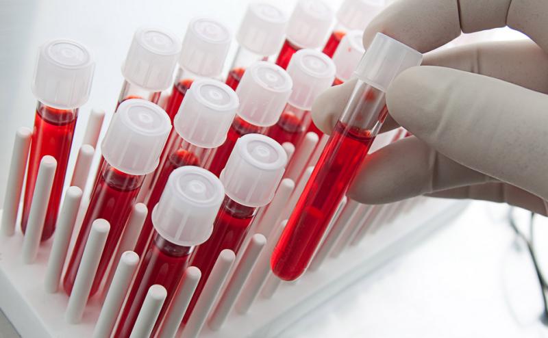 دراسة تشير إلى أن الفحوصات التي يطلبها مرضى السرطان غالباً ما تكون صحيحة
