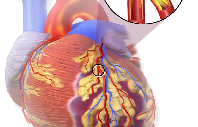 احتشاء العضلة القلبية