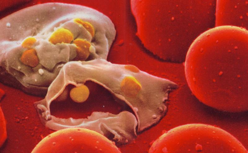 لماذا يوجد أشخاص لا يصابون بالملاريا