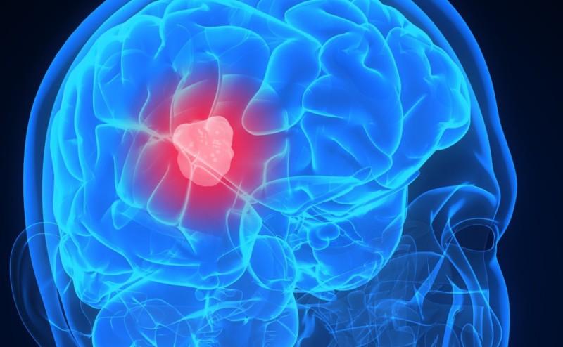 جهاز يخبرك إن أصبت بارتجاج في المخ بعد الحوادث