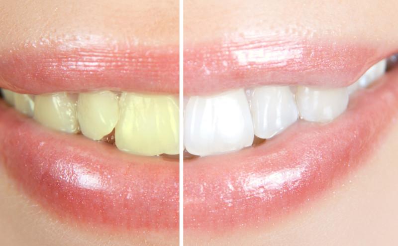 ست طرق لتبييض الأسنان بشكل طبيعي