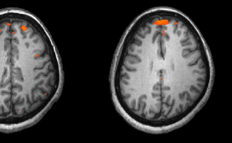اختلال كيميائي في الدماغ هو المسبب الأساسي لمرض الفصام