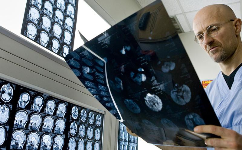 كيف توصل العلم لمرحلة زراعة رأس بشري على جسم آخر