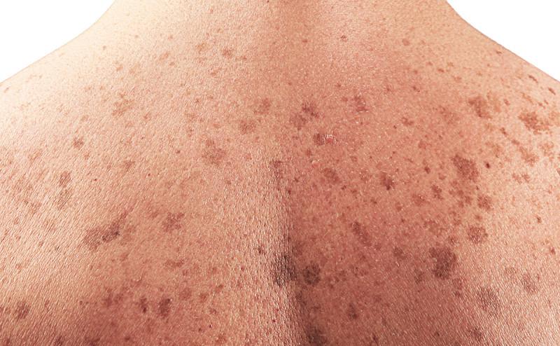 مضادات الأكسدة قد تزيد من سوء حالات سرطان الجلد