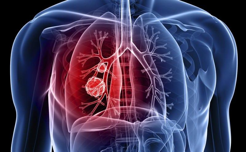 الخلايا السرطانية يمكن أن تسمم الخلايا الطبيعية