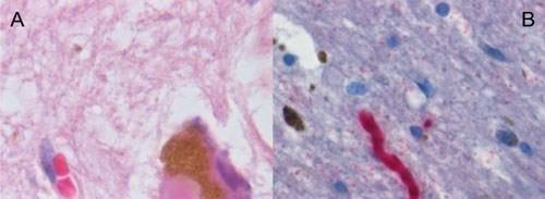 جين مرض الباركنسون يرتبط بجهاز المناعة