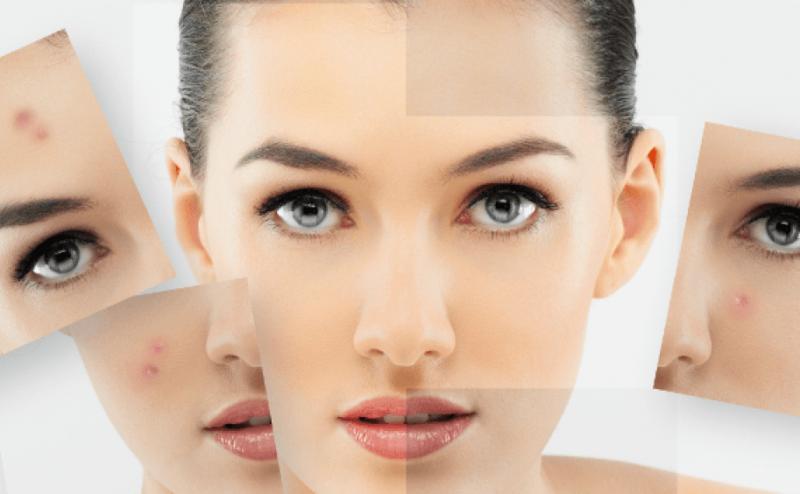 كيف تجعلين بشرتك صافية ونضرة بطرق طبيعية
