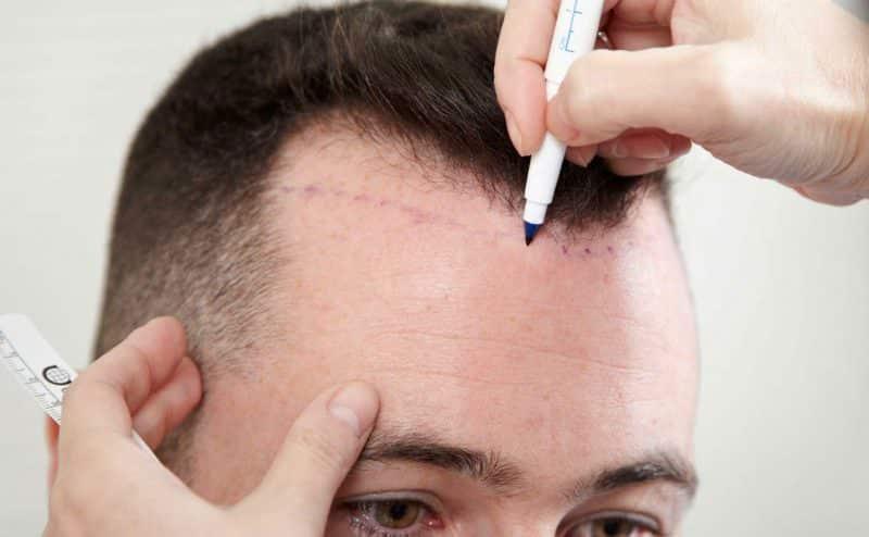 الرجال هم الأكثر إقبالا على عملية زراعة الشعر