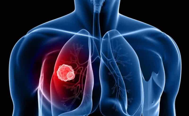 حقائق وخرافات حول مخاطر سرطان الرئة !