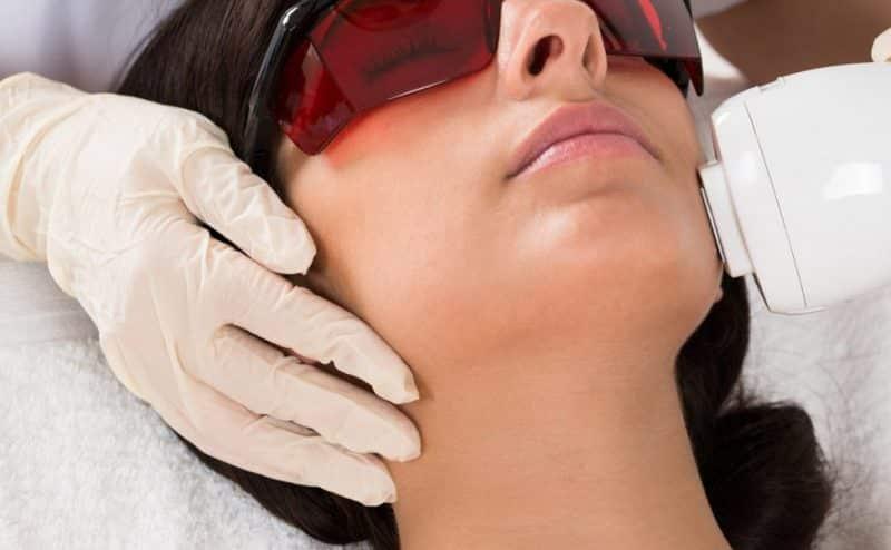 ما هي الآثار الجانبية لإزالة الشعر بالليزر؟
