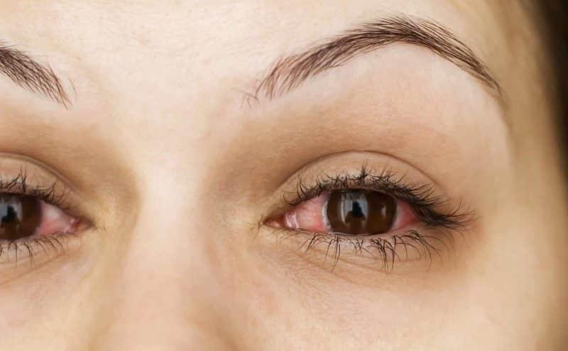 ما مدى معرفتك عن اسباب احمرار العين
