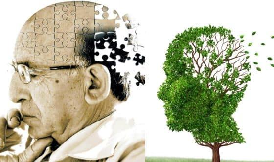 هل يمكن وقف مرض الزهايمر؟
