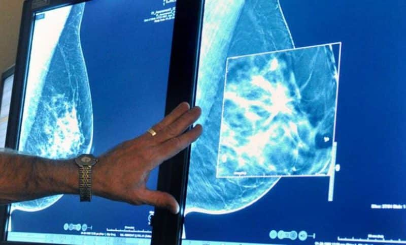 ماهي مراحل تطور سرطان الثدي؟