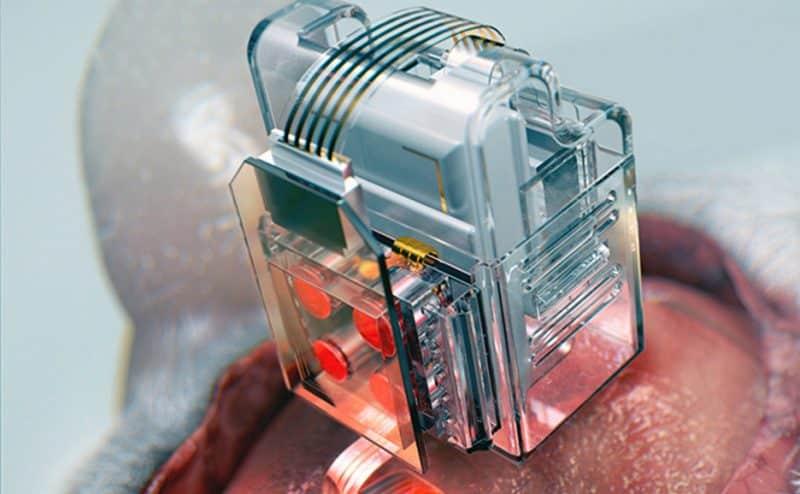 غرسات عصبية مرنة تسمح للعلماء بمعالجة خلايا المخ عبر الهاتف الذكي