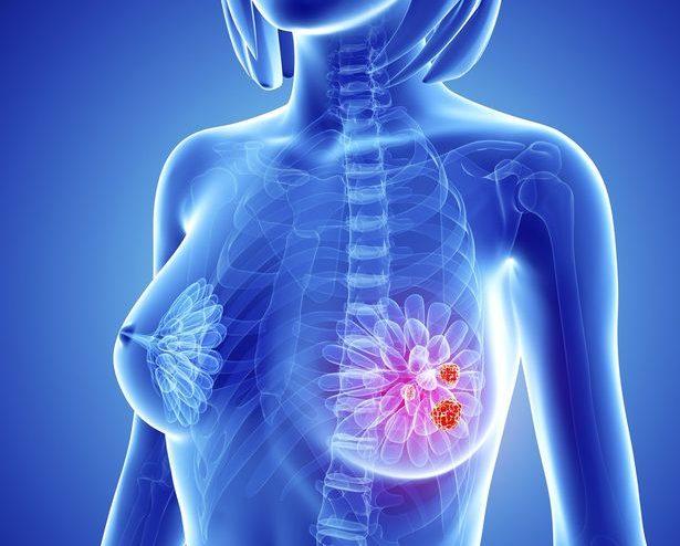 مضاد لهرمون الاستروجين يقلل من خطر الإصابة بسرطان الثدي بين النساء المسنات